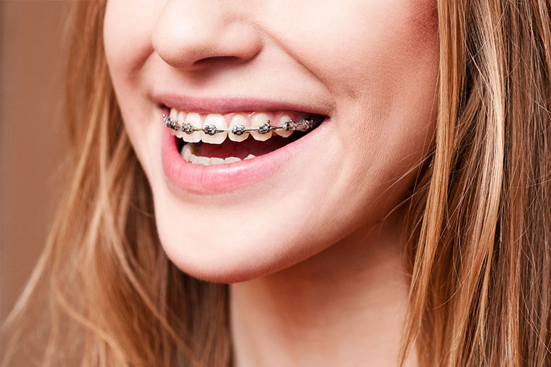Orthodontics in Fresno Orthodontics