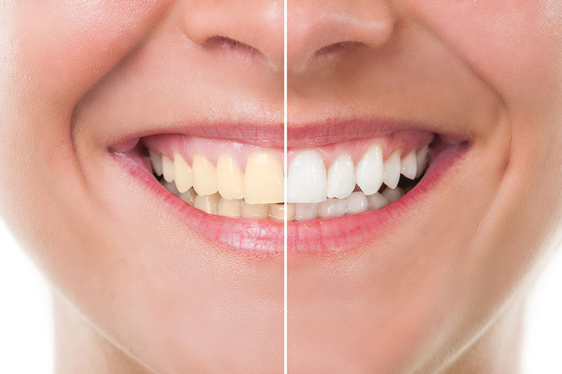 Teeth Whitening - Pearl Dentistry, Fresno Dentist